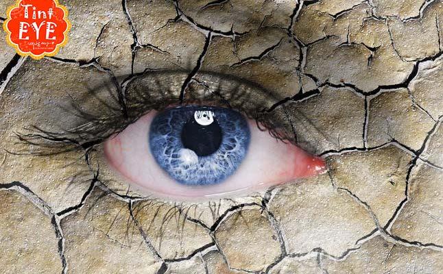 bệnh khô mắt