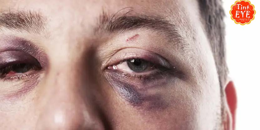 Cách xử lý vết bầm mắt do chấn thương